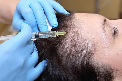 Hair Restoration - Wellness Medicine Center Services